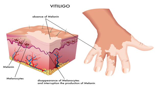 Get Stem Cell Therapy for Vitiligo in India with ...
