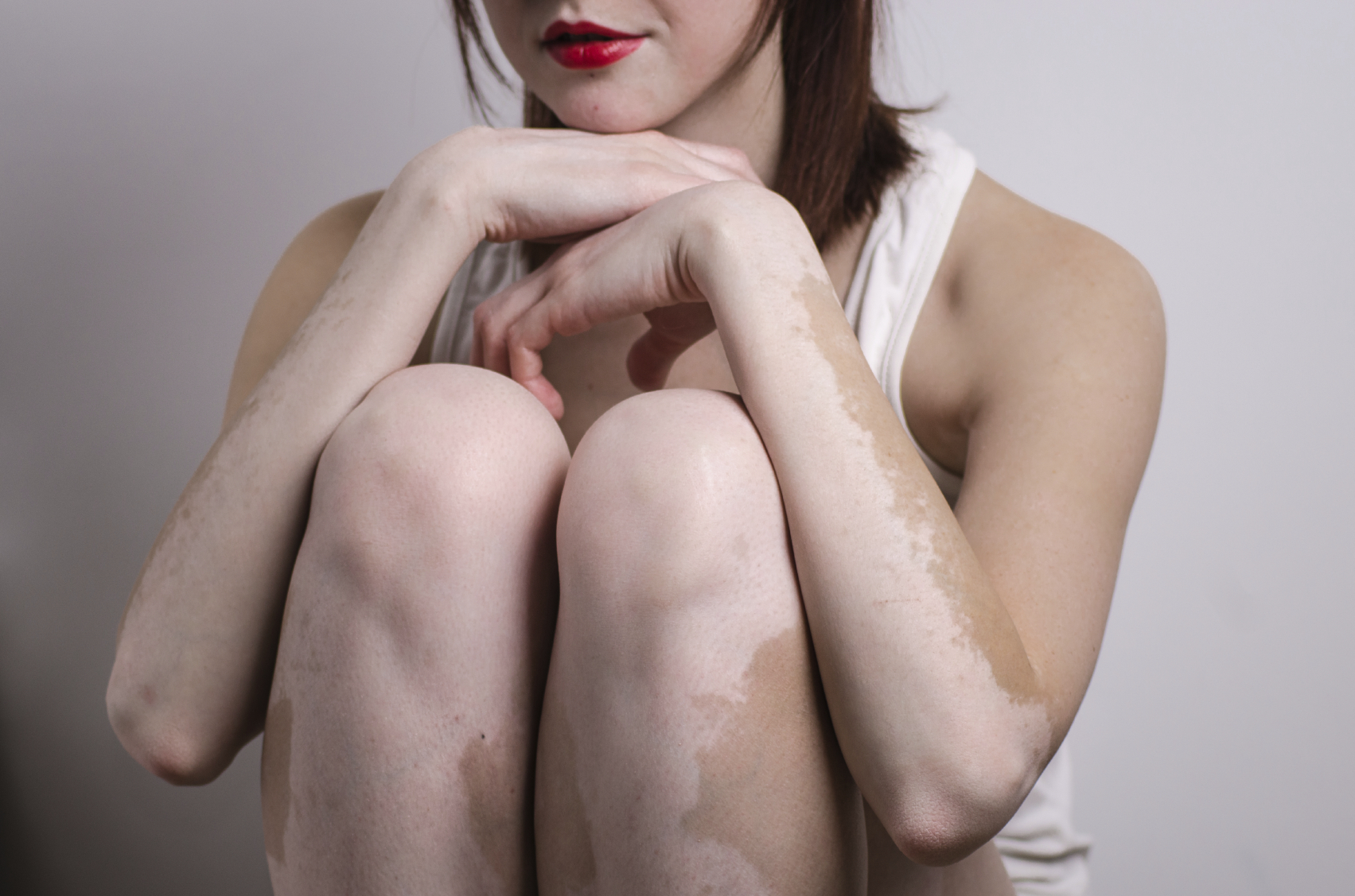 Get Stem Cell Therapy For Vitiligo In India With Tour2india4health Tour2india4health Blog