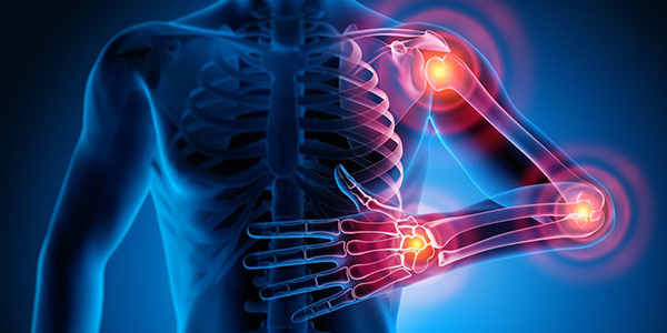 Stem Cell Therapy for Rheumatoid Arthritis in India