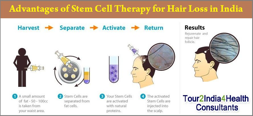 Stem Cell Therapy for Hair Loss in India, Cost Stem Cell Therapy for Hair Loss in India, Stem Cell Therapy for Hair Loss India, Price of Stem Cell Therapy for Hair Loss in India, Best Clinic Stem Cell Therapy for Hair Loss in India, Stem Cell Therapy for Hair Loss in Mumbai, Stem Cell Therapy for Hair Loss in Delhi, Stem Cell Therapy for Hair Loss in Goa, Best Stem Cell Therapy for Hair Loss in India, Stem Cell Therapy for Hair Loss,