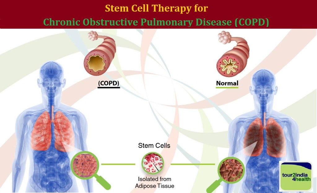 Stem Cell Therapy for Chronic Obstructive Pulmonary Disease,  Cost Stem Cell Therapy for Chronic Obstructive Pulmonary Disease in India,  Stem Cell Therapy for COPD India,  Low cost Stem Cell Therapy for Chronic Obstructive Pulmonary Disease in India,  Stem Cell Therapy for Chronic Obstructive Pulmonary Disease cost India,  Best Stem Cell Therapy for Chronic Obstructive Pulmonary Disease India,  Stem Cell Therapy for Chronic Obstructive Pulmonary Disease Delhi,Mumbai, Bangalore, India, Stem Cell Therapy India, Cost of Stem Cell Therapy, Low cost Stem Cell Therapy