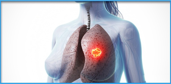 Stem Cell Therapy for Chronic Obstructive Pulmonary Disease in India