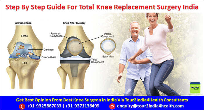 Total Knee Replacement Surgery, Total Knee Replacement Procedure India, Success rate of Total Knee Replacement India, Symptoms Of Total Knee Replacement Surgery, Signs Of Total Knee Replacement Surgery, Knee Replacement Implant India, Total Knee Replacement Surgery India, Step-By-Step Guide For Total Knee Surgery, benefits Total Knee Replacement surgery India, cost of Total Knee Replacement Surgery India,