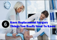 Knee Replacement Surgery 6 Things You Really Need to Know