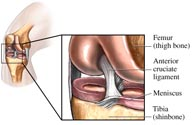 ligament injury symptoms, ligament surgery diagnosis, ligament injury surgery