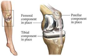 Arthroplasty Surgery in India
