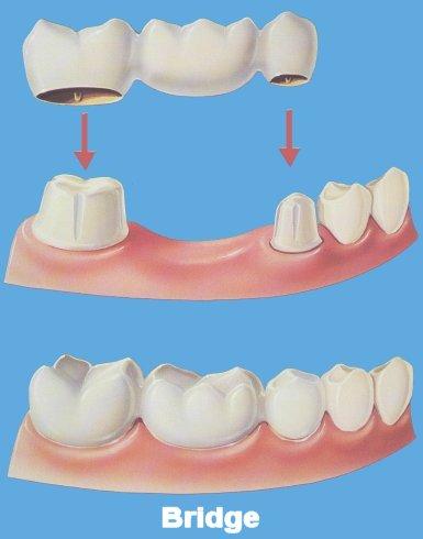 Permanent Dentures Cost In India >> Dental Surgery in India, Low Cost Dental Surgery India, Dental Surgery Benefits India