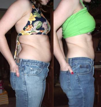 Liposuction Surgery India