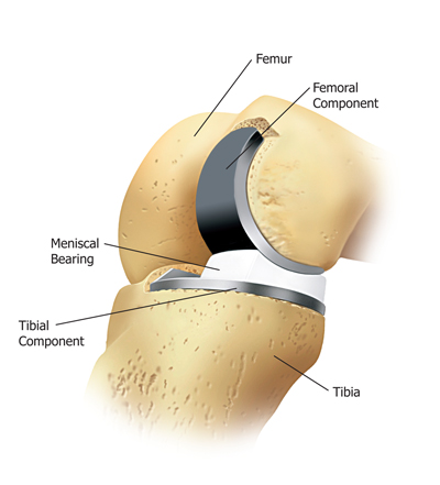 Partial Knee Replacement Surgery in India