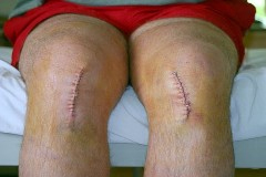 Recovery after Partial Knee Replacement Surgery India
