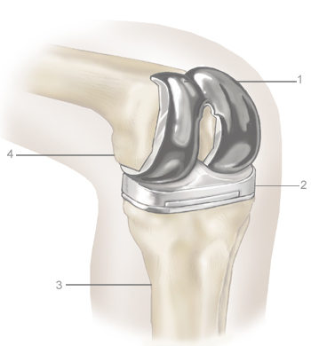 low cost total knee replacement India