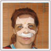 nose reconstruction surgery,nose reconstruction surgery India,nose reconstruction surgeons