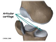 ligament surgery India, cost ligament surgery India, low cost ligament surgery India, ligament surgery benefits India