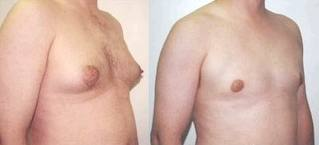 cost breast reduction surgery India