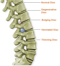 What is laser spine surgery?
