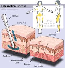 low cost lipoplasty surgery India
