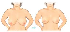 Women breast reduction surgery