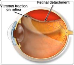 Detached Retina Symptoms Amp Treatment Suby111 S Blog