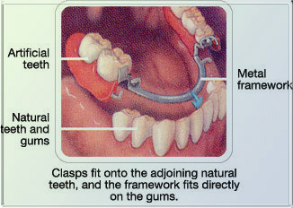 Dental Crown Treatment India Cost Dental Crown Treatment Dental
