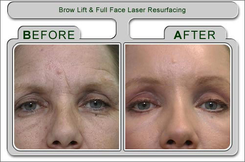 Laser Resurfacing Treatment India Cost Laser Resurfacing Treatment