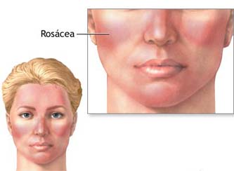 Facial Vein Removal Rosacea Treatment India Cost Facial Vein Removal Rosacea Treatment Facial Vein Removal