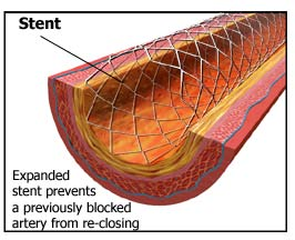 coronary artery disease treatment cost in india