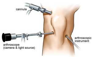 Minimally Invasive Knee Replacement surgery India