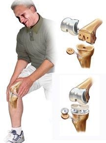 Procedure for Total Knee replacement