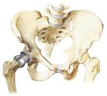 Revision Hip Replacement surgery India