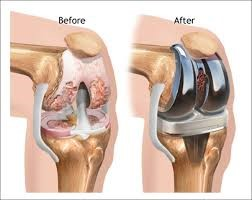 before and after robotic knee surgery