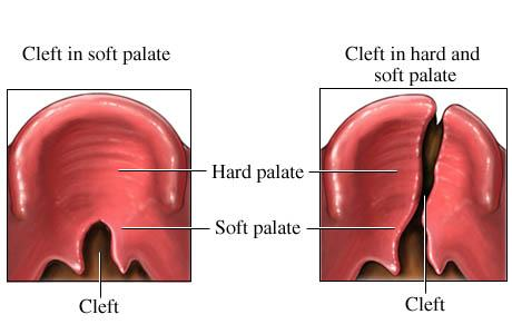 Cleft Palate India