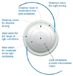 Intra Ocular Lens lmplant Surgery India