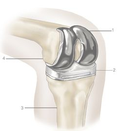 Total knee replacement India low cost benefits