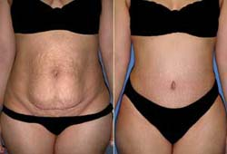 Tummy Tuck Surgery Benefits India